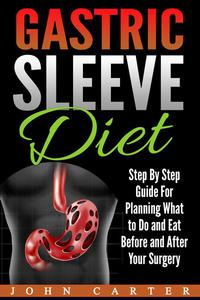 Gastric Sleeve Diet: Step By Step Guide For Planning What to Do and Eat Before and After Your Surgery