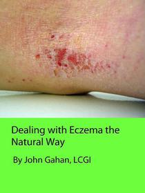 Dealing with Eczema the Natural Way