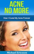 Acne No More: How I Cured My Acne Forever