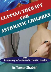 Cupping Therapy for Asthmatic Children