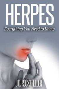 Herpes: Everything You Need To Know