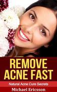 Remove Acne Fast: Natural Acne Cure Secrets