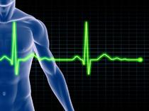 Newman's EKG Technician Study Guide