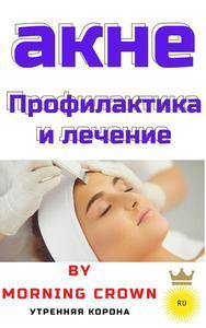 акне Профилактика и лечение