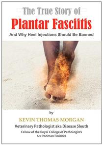 The True Story of Plantar Fasciitis: And Why Heel Injections Should Be Banned