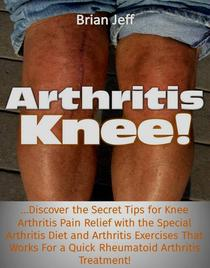 Arthritis Knee! …Discover the Secret Tips for Knee Arthritis Pain Relief with the Special Arthritis Diet and Arthritis Exercises That Works For a Quick Rheumatoid Arthritis Treatment!